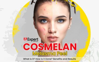 Cosmelan Melasma Peel: What is it? How is it Done? Benefits and Results