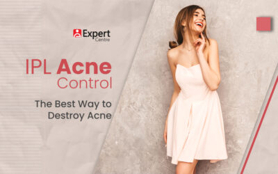 IPL Acne Control: The Best Way to Destroy Acne