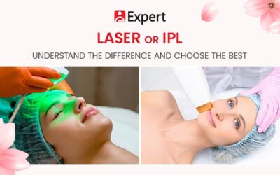 Laser or IPL: Understand the Difference and Choose the Best