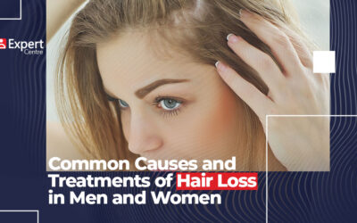Common Causes and Treatments of Hair Loss in Men and Women