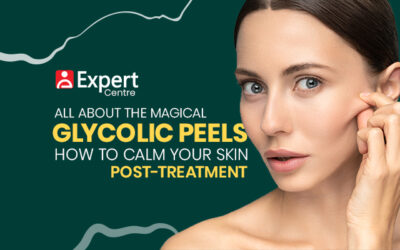 All About the Magical Glycolic Peels and How to Calm Your Skin Post-Treatment
