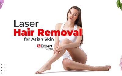 Laser Hair Removal for Asian Skin